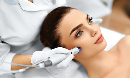 One, Two, or Four Microdermabrasion with mini Facials at Laser by Nicole (Up to 73% Off)