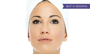 Dreams Beauty Center: One Microdermabrasion at Dreams Beauty Center (Up to 59% Off)