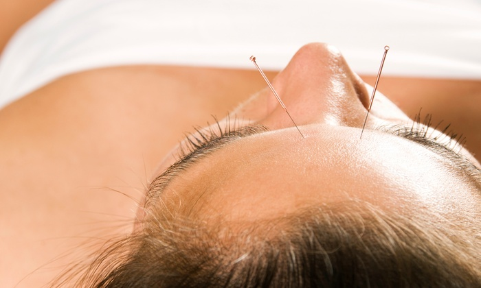 Nature Wellness, Inc. - Multiple Locations: Wellness Consultation and Exam with One, Three, or Six Acupuncture Treatments at Nature Wellness, Inc. (Up to 76% Off)