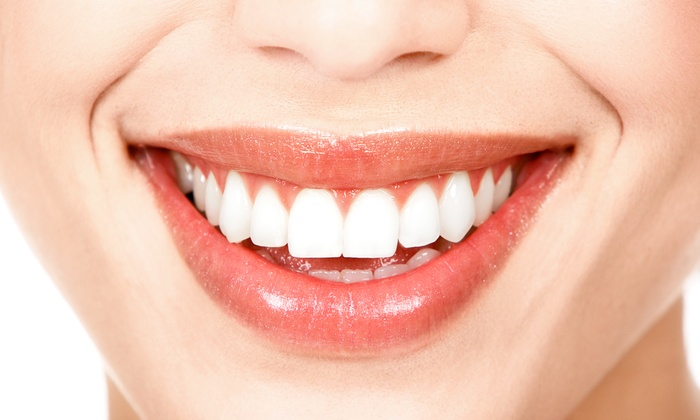 Pine Tree Dental - Chantilly: $39 for an Exam and Cleaning with a $400 Credit Toward Teeth Whitening at Pine Tree Dental ($376 Value)