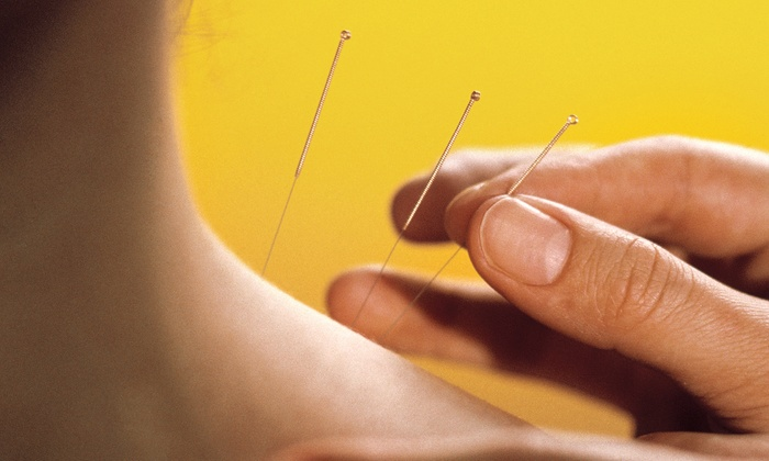Acupuncture Connecticut - Facial Aesthetics, Acupuncture, and Massage: One, Three, or Six Acupuncture Sessions with Evaluation at Facial Aesthetics, Acupuncture, and Massage (Up to 77% Off)