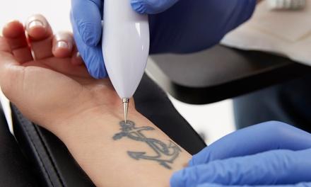 Wertgutschein über 100 € oder 200 € anrechenbar auf eine Tattoo-Entfernung bei hautschicht