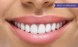 NICOLA PAOLESCHI (11 studi dentistici): Nicola Paoleschi: 1 o 2 sedute con igiene dentale, smacchiamento o sbiancamento. Valido in 11 studi (sconto fino a 89%)