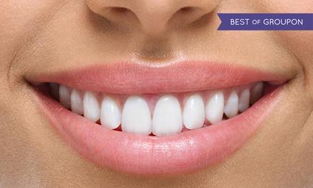 Igiene dentale e sbiancamento in 12 studi