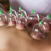 Up to 30-Minute Cupping Session