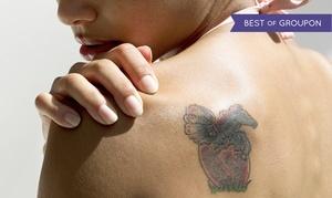 MediGold: Usuwanie tatuażu laserem Nd-Yag: 3 zabiegi od 209,99 zł i więcej opcji w MediGold
