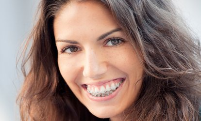 image for Clear Braces for One or Two Arches with Fixed Retainers at iDental (70% Off)