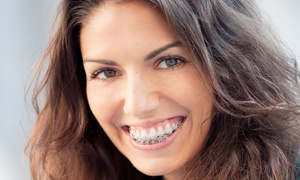 iDental: Clear Braces for One or Two Arches with Fixed Retainers at iDental (70% Off)