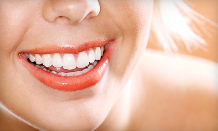 Vanguard Dental - Mineola: $49 for a Dental Package with Exam, Cleaning, and X-rays at Vanguard Dental in Mineola ($450 Value)