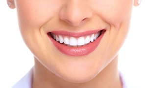 Centrum Stomatologii Royal Dent: Skaling, piaskowanie i fluoryzacja od 79,99 zł w Centrum Stomatologii Royal Dent