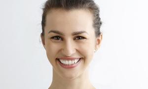 JK Dentysta: Wybielanie zębów lampą Beyond, przegląd i konsultację dla 1 osoby za 299,99 zł w gabinecie JK Dentysta