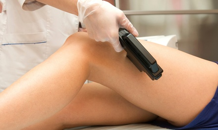 Year of Laser-Hair Removal on a Small, Medium, or Large Area, or 7 Body Parts at Silk Med Spa (Up to 98% Off)