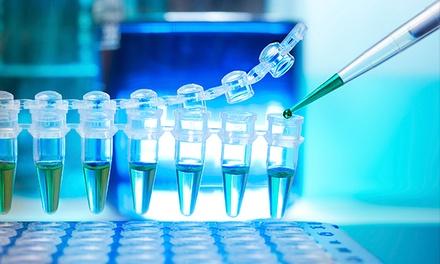 Test de ADN nutricional para 1 o 2 reducir el sobrepeso y mejorar tu bienestar global por 79 € en People Genetics
