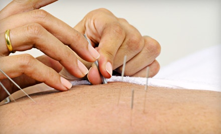 Relaxation-Acupuncture Session and a Chiropractic Adjustment (a $105 value) - Innercore Health in London
