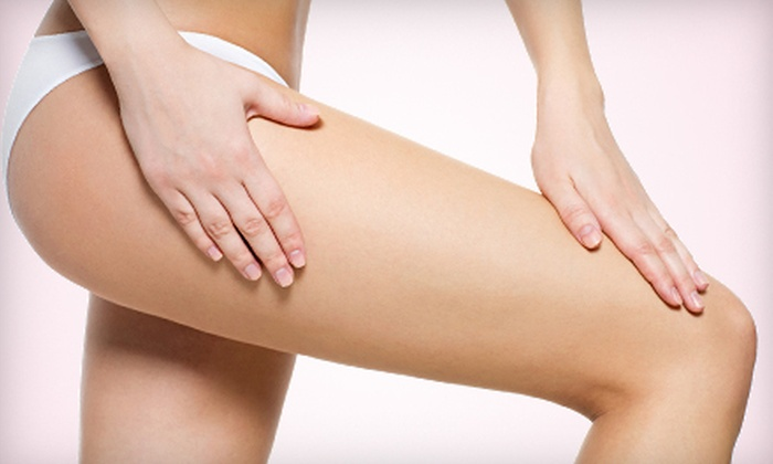 Aspiring Laser Renewal - Bear Valley: Two or Five Laser Spider-Vein Treatments on One or Both Legs at Aspiring Laser Renewal (Up to 83% Off)