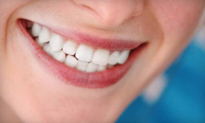 SmileLABS - West Omaha: $149 for a TOTAL White Package of Six Teeth Whitening Sessions at SmileLABS
