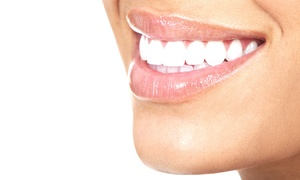 Dr. Ross A. Kaplan, D.M.D., P.C.: Professional In-Office Teeth Whitening with Optional Dental Exam from Dr. Ross A. Kaplan, D.M.D., P.C. (Up to 83% Off)