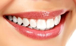 Whitening Point TOR: Wybielanie zębów akceleratorem LED za 199,90 zł i więcej opcji w Instytucie Yasumi Toruń Podgórz