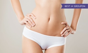 Aesthetic Advantage: One SmartLipo Body-Sculpting Treatment on One or Two Large Areas at Aesthetic Advantage (Up to 80% Off)