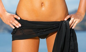 OZEN Therapy: $29 for a Women's Brazilian Wax at Ozen Therapy (Up to $50 Value)