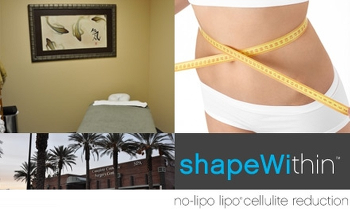Shape Within - Canyon Gate: $99 for Three Cellulite-Reduction Treatments at Shape Within