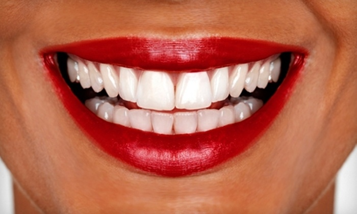 Turbo-Brite: $39 for an Elite Home Teeth Whitening Package from Turbo-Brite ($129.99 Value)