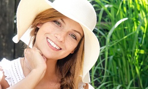 FitDent Gabinet Stomatologiczny: Wybielanie zębów systemem Beyond dla 1 osoby za 299zł i więcej opcji w FitDent Gabinet Stomatologiczny