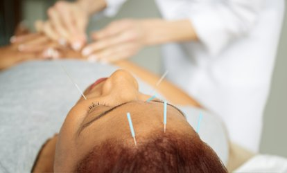 One Initial Consultation with <strong>Acupuncture</strong> at LifeTree Clinic (Up to 65% Off)