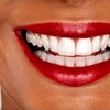 Up to 77% off Services at Needham Dental