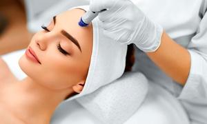 Tendencia Urbana Estética y Spa: 1, 2 o 4 sesiones de peeling facial con punta de diamante en Tendencia Urbana Estética y Spa