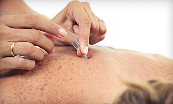 Medical Acupuncture - Deer Oaks Office Complex: One, Three, or Five Acupuncture Sessions at Medical Acupuncture (Up to 61% Off)