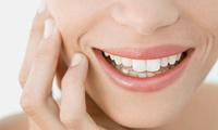 【最大78%OFF】白い歯なら、笑顔に自信が持てる≪セルフホワイトニング/1回分 or 2回分 4回分≫男女利用可 @歯ッピーライフ