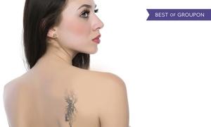 Studio Medico Estetico Dr. Turco: 3 o 5 sedute con laser Q-Switched per la rimozione di macchie cutanee o tatuaggi (sconto fino a 89%)