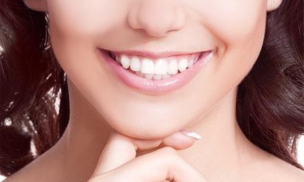 Paga 699 € y consigue un descuento de 1.700 € en una ortodoncia invisible