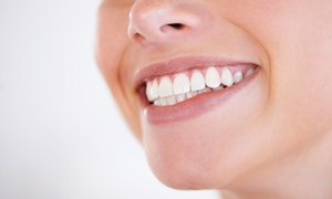 BUC Fitness Club: Natural Teeth Whitening Treatment from R599 for One at BUC Fitness Club (37% Off)