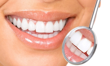Zoom Teeth Whitening with Optional Polish, or Advanced Teeth Whitening Package at Dental Care London