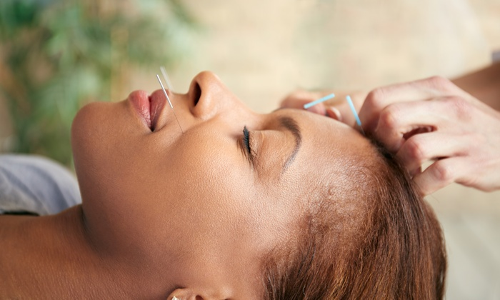 Mulberry Leaf Acupuncture & Herbs - Mulberry Leaf Acupuncture & Herbs: $79 for a Facial Rejuvenation Acupuncture Treatment at Mulberry Leaf Acupuncture & Herbs ($240 Value)