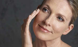 Ageless Cosmetic & Laser Clinics: Anti-Wrinkle Injections: 20 ($70) or 50 Units ($175) at Ageless Cosmetic & Laser Clinics
