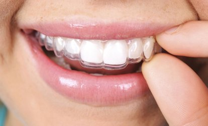 image for Clear Aligners with Teeth Whitening for One or Two Arches at Bright Smiles Dental Clinic (54% Off)