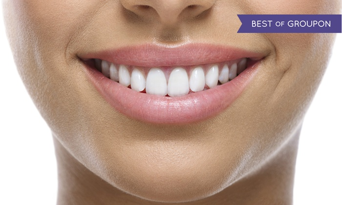 Pearly Whites Express - Mishawum: One or Two 60-Minute In-Office Teeth-Whitening Treatments at Pearly Whites Express (Up to 86% Off)