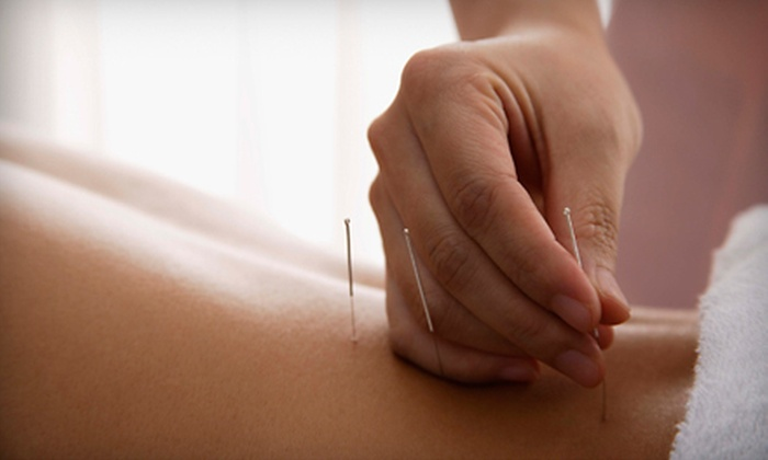 Modern Point Acupuncture - Maple Grove: One or Two Acupuncture Treatments at Modern Point Acupuncture (Up to 69% Off)