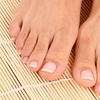 Up to 70% Off Laser Toenail-Fungus Removal
