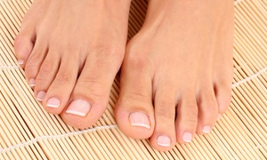 San Mateo Podiatry Group: Laser Toenail-Fungus Removal for Up to 3, 5, or 10 Toes at San Mateo Podiatry Group (Up to 72% Off)