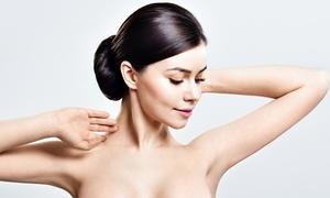 Gold Skin Care: 3x oder 5x IPL-Behandlung an einer kleinen oder großen Zone nach Wahl bei Gold Skin Care (bis zu 89% sparen*)
