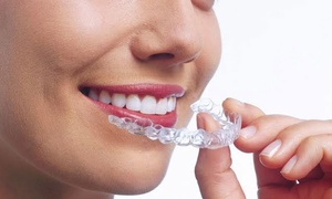 Max Dental: Paga desde 259 € por un descuento de 2000 € en tratamiento Invisalign con opción a blanqueamiento en Max Dental