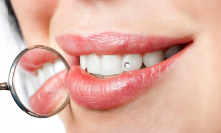 Auckland Dental: Up to 70% off Dental in Auckland
