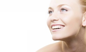 Bellisimos: One or Three Sessions of Microdermabrasion at Bellisimos (Up to 78% Off)
