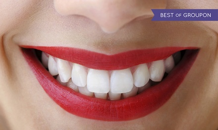 Zoom! Teeth Whitening: One-Hour Session for One or Two at Glamour Smile Clinic (Up to 86% Off)