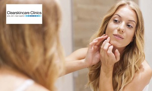 Clear Skincare Clinics: $49 for an Acne Treatment Package at Clear Skincare Clinics, 41 Locations ($120 Value)