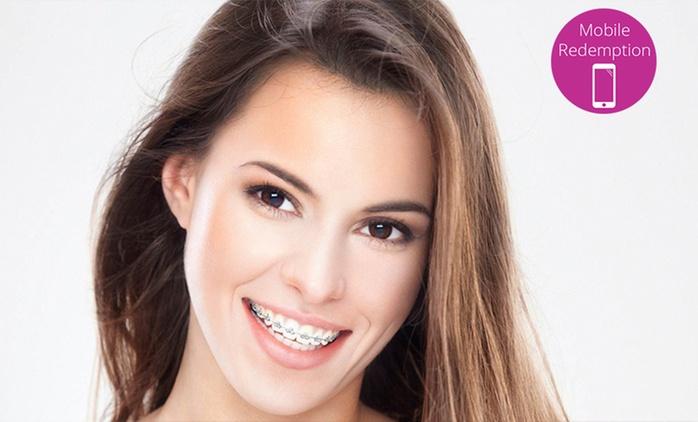 AUCKLAND: Fastbraces® Orthodontics - Deposit ($1,000) or Full Package ($3,999) at Guardian Dental Care